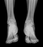 X-ray. Medical copy of two soles ,front view royalty free stock photos
