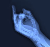 X-ray of the middle finger. Stock Photography