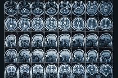 X-Ray or MRI scan or magnetic resonance tomography image of human brain and head close up, neurology concept.  stock photos