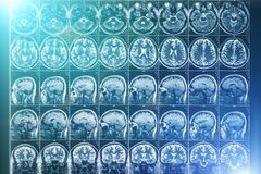 X-Ray or MRI scan or magnetic resonance tomography image of human brain and head, neurology concept. X-Ray or MRI scan or magnetic resonance tomography image of royalty free stock images