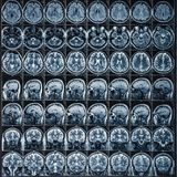 X-Ray or MRI scan or magnetic resonance tomography image of human brain and head, neurology concept. X-Ray or MRI scan or magnetic resonance tomography image of stock photography
