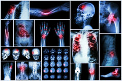 X-ray multiple disease (Stroke (cerebrovascular accident) : cva ,Pulmonary tuberculosis ,Bone fracture ,Shoulder dislocation royalty free stock photography