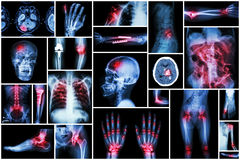 X-ray multiple disease ( stroke (CVA) , fracture , shoulder dislocation , bowel obstruction , rheumatoid arthritis , gout , osteoa Royalty Free Stock Photography