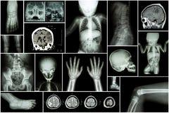 X-ray multiple part of child 's body & multiple disease ( stroke , brain tumor , rheumatoid arthritis , sinusitis , gouty arthriti. S , etc)( skull chest lung Royalty Free Stock Photo