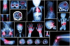 X-ray multiple part of child 's body & multiple disease ( stroke , brain tumor , rheumatoid arthritis , sinusitis , gouty arthriti Royalty Free Stock Images