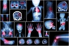 X-ray multiple part of child 's body & multiple disease ( stroke , brain tumor , rheumatoid arthritis , sinusitis , gouty arthriti. S , etc)( skull chest lung Royalty Free Stock Images