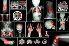 X-ray multiple part of child 's body & multiple disease ( stroke , brain tumor , rheumatoid arthritis , sinusitis , gouty arthriti Royalty Free Stock Photos