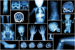 X-ray multiple part of child 's body & multiple disease ( stroke , brain tumor , rheumatoid arthritis , sinusitis , gouty arthriti Stock Images