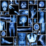 X-ray multiple part of human Royalty Free Stock Image
