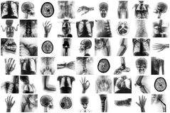 X-ray multiple part of human and many medical condition and disease royalty free stock photo