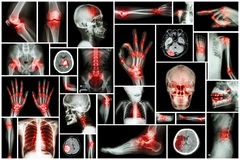 X-ray multiple part of human with multiple disease (stroke, arthritis, gout, rheumatoid, brain tumor, osteoarthritis, etc) Royalty Free Stock Image