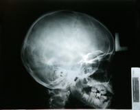 X-ray of my younger brother head Stock Photo