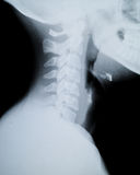 X ray neck and Jaw Stock Image