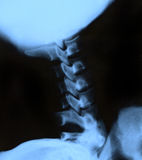 X-ray of the neck Royalty Free Stock Photography
