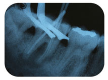 X-Ray Negative Tooth Endodontic. X-Ray Negative of the Tooth Endodontic process Stock Images