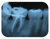 X-Ray Negative Tooth Endodontic. X-Ray Negative of Tooth Endodontic Process Stock Photos