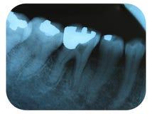 X-Ray Negative Tooth Filling Amalgam. X-Ray Negative of Tooth Filled with Amalgam Royalty Free Stock Photography