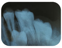 X-Ray Negative Tooth Impaction. X-Ray Negative showing Tooth Impaction Stock Photography