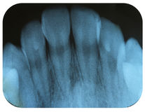 X-Ray Negative Tooth Incisors. X-Ray Negative showing the Tooth Incisors Stock Image