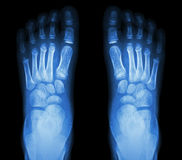 X-ray normal child's foots Stock Photography