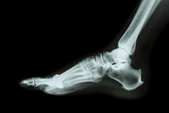 X-ray normal foot lateral Royalty Free Stock Photos