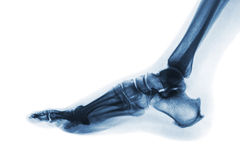 X-ray normal human foot . Lateral view . Invert color style Royalty Free Stock Photography