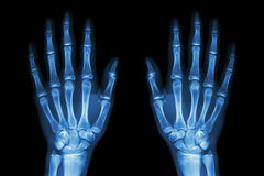 X-ray normal human hands (front)  on black background Stock Photos