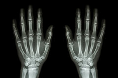 X-ray normal human hands (front) Royalty Free Stock Photography