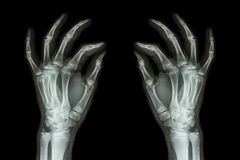 X-ray normal human hands (front) on black background Royalty Free Stock Photos