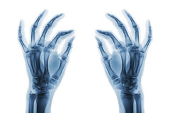 X-ray normal human hands on white background . Oblique view Royalty Free Stock Photo