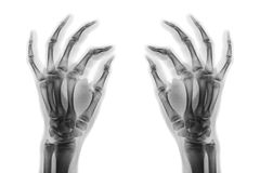 X-ray normal human hands on white background . Oblique view Stock Images