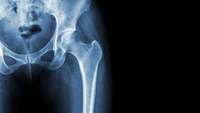 X-ray normal pelvis and hip joint . Blank area at right side.  stock images