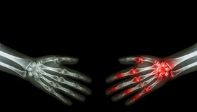 X-ray normal person is shaking hand with Arthritis hand person Royalty Free Stock Images