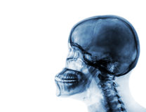 X-ray normal skull and cervical spine . Lateral view . Blank area at left side stock images