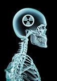 X-ray nuclear Royalty Free Stock Photos