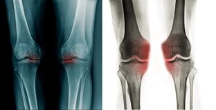 X-ray OA knee both side. X-ray OA knee, blue and grey tone royalty free stock photo
