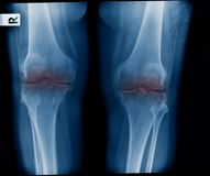 X-ray OA knee both knee in blue tone. X-ray image of knee joint show mild degenerative change stock images