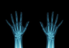 Free X-Ray Of Hands Royalty Free Stock Photography - 8877557