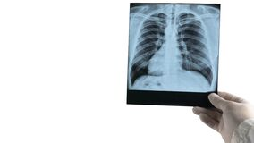 Free X-ray Of Human Lungs At Doctor S Hand Isolated On White Background Royalty Free Stock Photography - 209238217