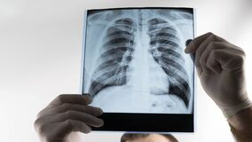 Free X-ray Of Human Lungs On A White Background At A Doctor In The Hands Of An X-ray Lung Stock Photos - 209238243