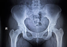 X-ray orthopedic scan  image of hip joints human skeleton Stock Photos