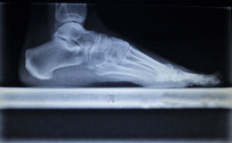 X-ray orthopedics scan of foot injury load weight bearing Royalty Free Stock Images