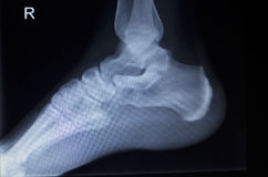 X-ray orthopedics scan of foot injury Royalty Free Stock Images