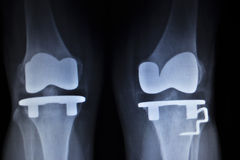 X-ray orthopedics scan of knee meniscus implant prosthetics Royalty Free Stock Image