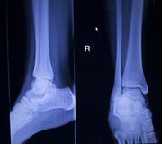 X-ray orthopedics scan of painful ankle foot injury Royalty Free Stock Images