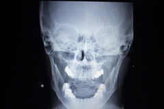 X-ray orthopedics Traumatology scan nose injury breathing. X-ray orthopedic medical CAT scan of painful nose injury breathing difficulties respiratory problems Stock Photo