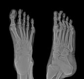 X-ray. Pair of feet from different views royalty free stock photos