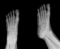 X-ray. Pair of feet from different views royalty free stock images