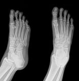 X-ray. Pair of feet from different views stock photos