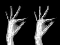 X-Ray. Of pair hand stock image